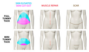 difference between a mini and full abdominoplasty